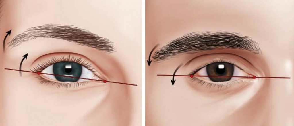 Лазерная коррекция бровей до и после у мужчин thumbnail