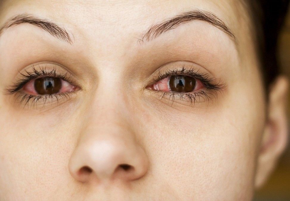 Болят глаза после наращивания ресниц