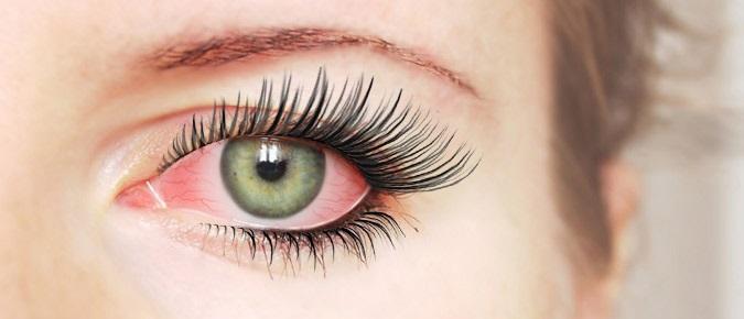 Красные глаза после наращивания ресниц